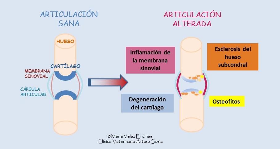 Artrosis 2